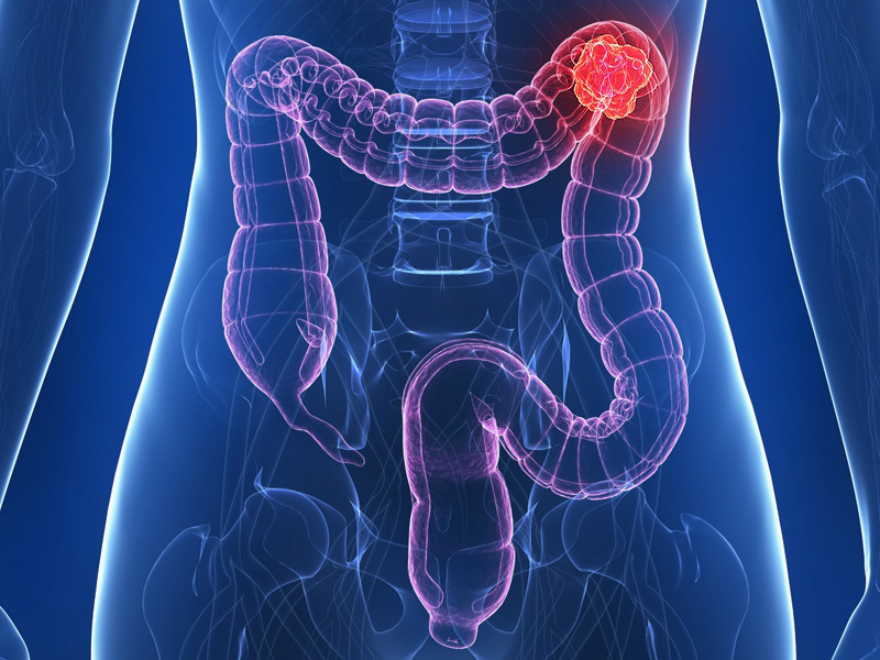 Colon Cancer Deaths rises among young adults, experts don't know why!