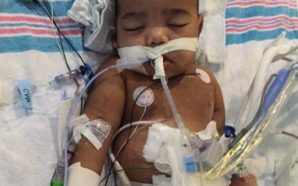 Toddler denied father's kidney has successful transplant surgery